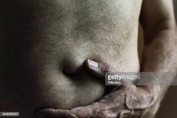 Dark Man Umbilical Hernia Bulge