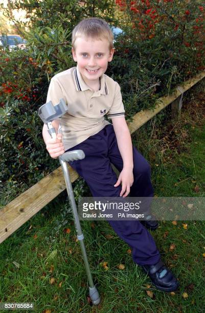 Darryl Noyce from ShipstononStour Warwickshire who feared that he would lose his right leg following a car accident and is now walking again after...