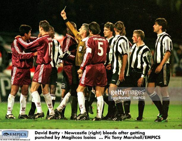 David Batty Newcastle bleeds after getting punched by Magihcos Isaias