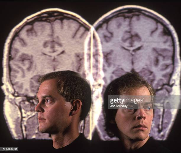UNDATED David Elmore and his identical twin brother Steven Elmore pose before their brain scans in 1995 in the US Doctors at the National Institute...