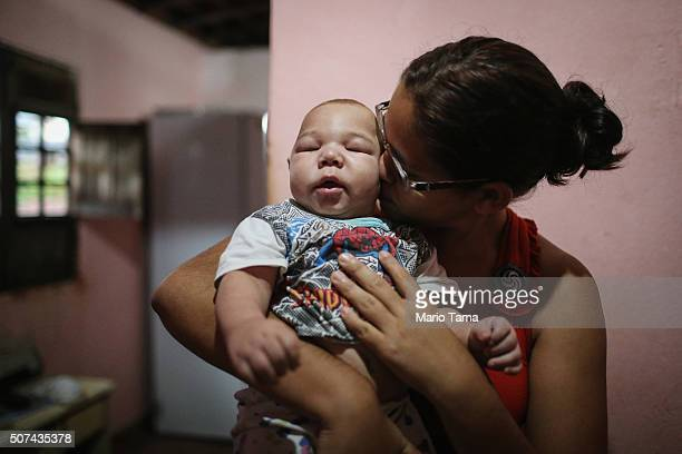 David Henrique Ferreira 5 months who was born with microcephaly is kissed by his mother Mylene Helena Ferreira on January 29 2016 in Recife...