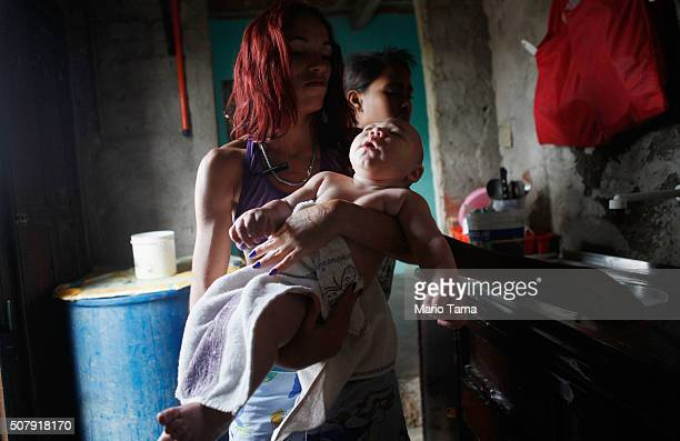 David Henrique Ferreira 5 months who was born with microcephaly is carried by his aunt Sterfany Ferreira after a bath on February 1 2016 in Recife...