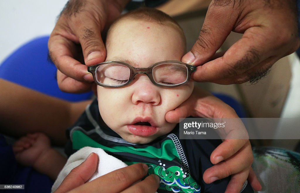 David Henrique Ferreira, 9-months-old, who was born with microcephaly, is tested with new glasses on May 31, 2016 in Recife, Brazil. Microcephaly is a birth defect linked to the Zika virus where infants are born with abnormally small heads. Vision problems have also been reported with some of the infants. The city of Recife and surrounding Pernambuco state remain the epicenter of the Zika virus outbreak, which has now spread to many countries in the Americas. A group of health experts recently called for the Rio 2016 Olympic Games to be postponed or cancelled due to the Zika threat but the WHO (World Health Organization) rejected the proposal. The Olympic torch passed through Recife today.