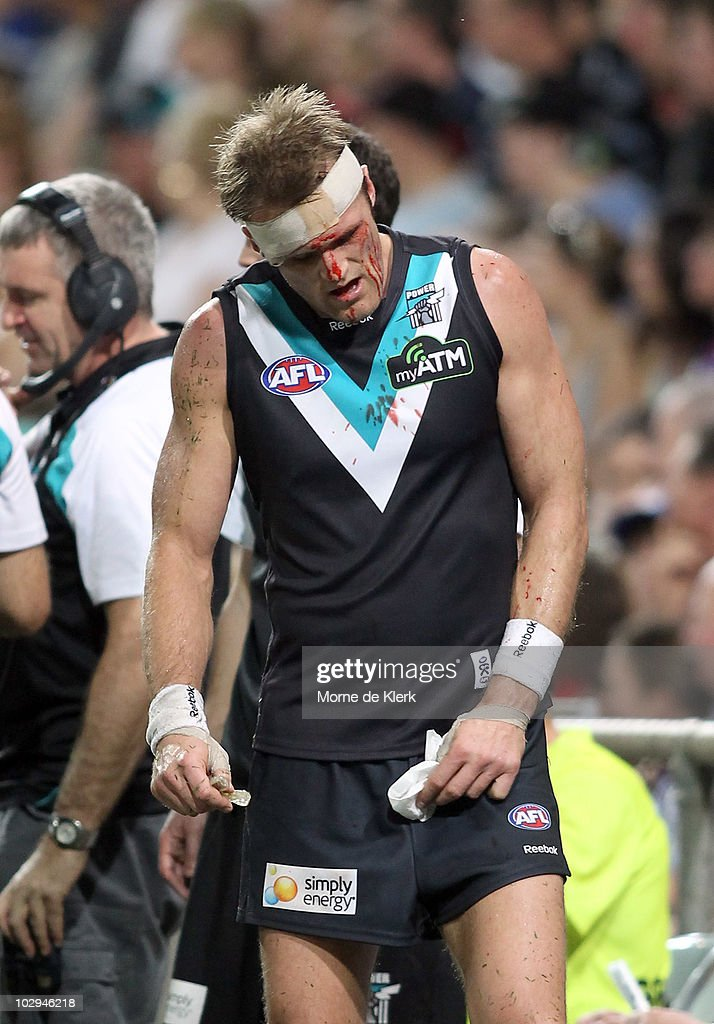 Dean Brogan of the Power comes off to get the wound to his head looked at during the round 16 AFL match between the Western Bulldogs and the Port...