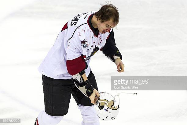 A bloody Lake Erie Monsters D Duncan Siemens heads o the locker room after fighting during the game between the Milwaukee Admirals and Lake Erie...
