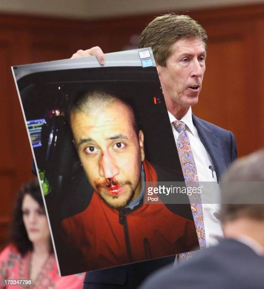 Defense attorney Mark O'Mara holds up the photo of George Zimmerman from the night of the Trayvon Martin shooting during closing arguments for the...