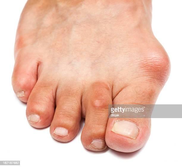 Deformato piede-Alluce valgo
