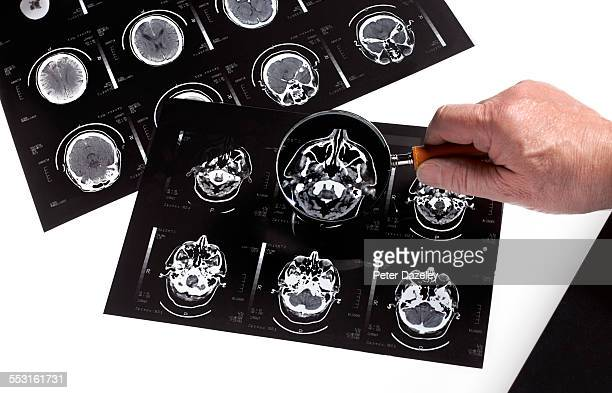 Dementia bran scan research