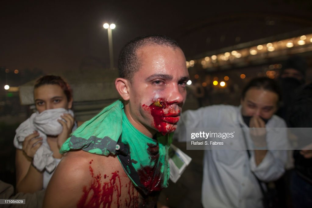 A demonstrator is seen with a foreign object in his face during clashes with riot police in a protest against bus fare price hikes June 20, 2013 in Rio de Janeiro, Brazil. Protesters took to the streets in Rio de Janeiro, Sao Paulo and Brasilia in mass nationwide protests against corruption, demanding better public services and protest the spending on staging the World Cup.