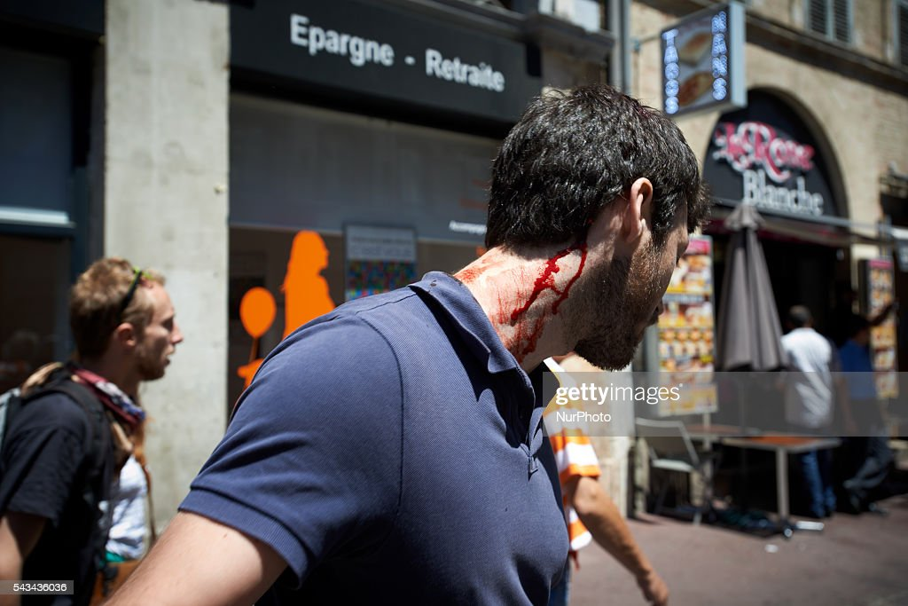A demonstrator shows his wound after riot police intervene at the end of a protest against the El-Khomri bill on labour reforms. Demonstrators also protest against the use of article 49.3 which bypass the Parliament . Toulouse. France. June 28th, 2016.
