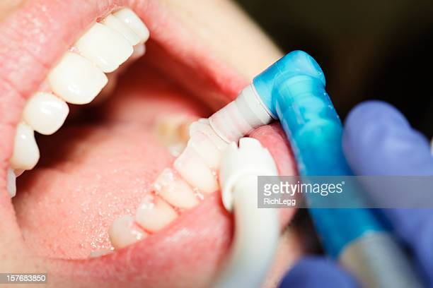 Dental Cleaning Close-up