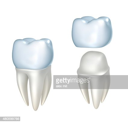 Dental crowns and tooth, isolated on white : Stock Photo