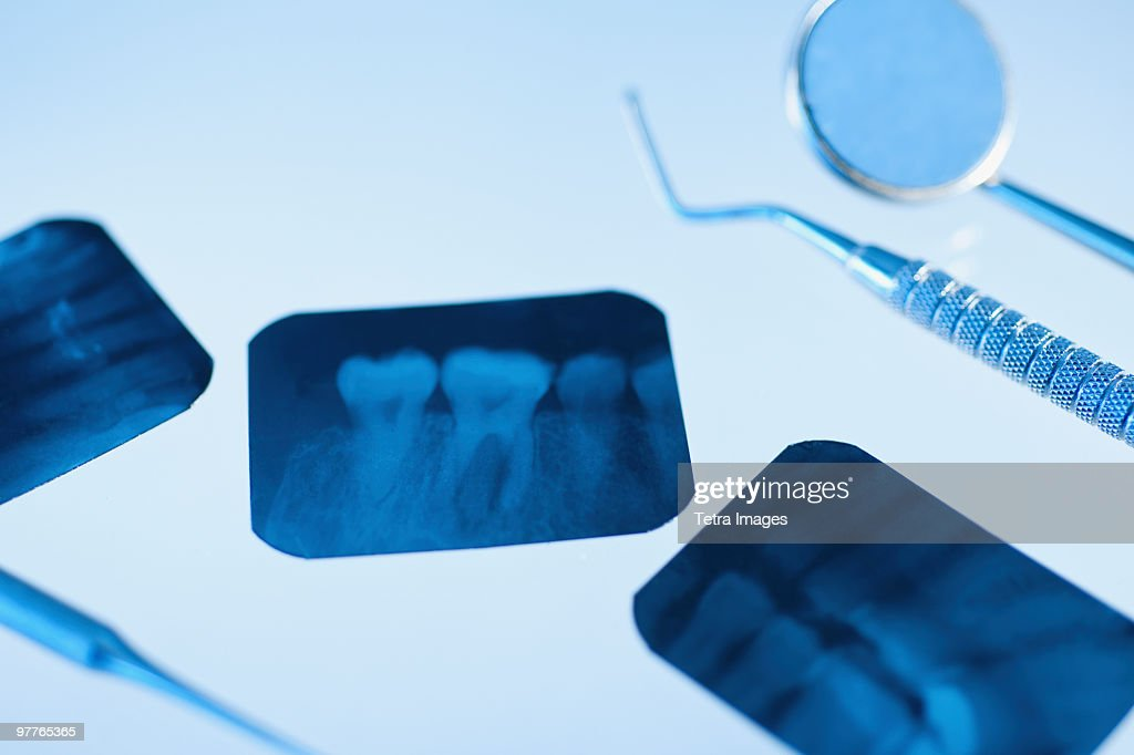 Dental instruments and x-rays