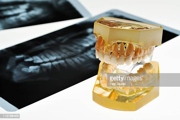 A dental model and X-rays