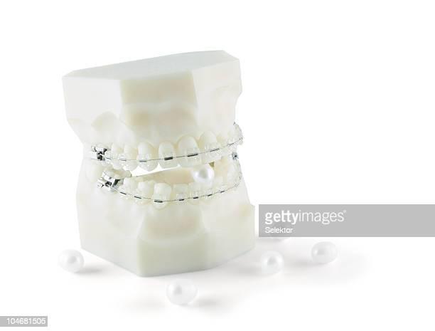 Zahnabdruck mit Zahnspange und Perlen