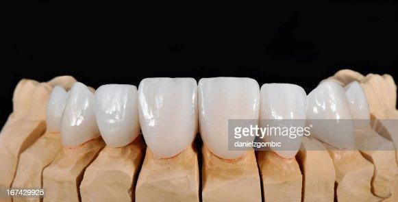 Folheados de Dentista : Foto de stock