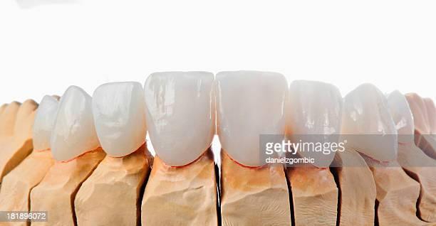 Veneers dentale