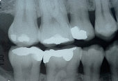 Dental x- ray ( Bitewing technic ) for check dental caries