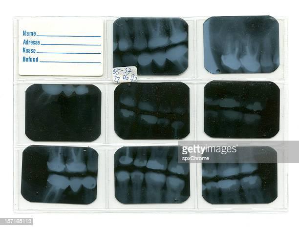 Dental X-rays - Forensic