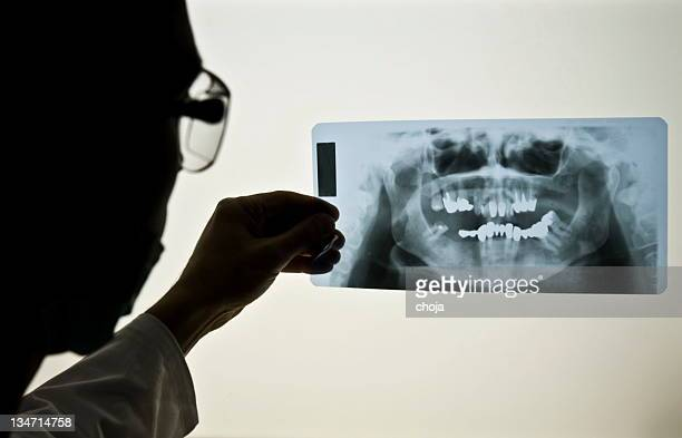 Dentista esaminando una radiografia dei denti