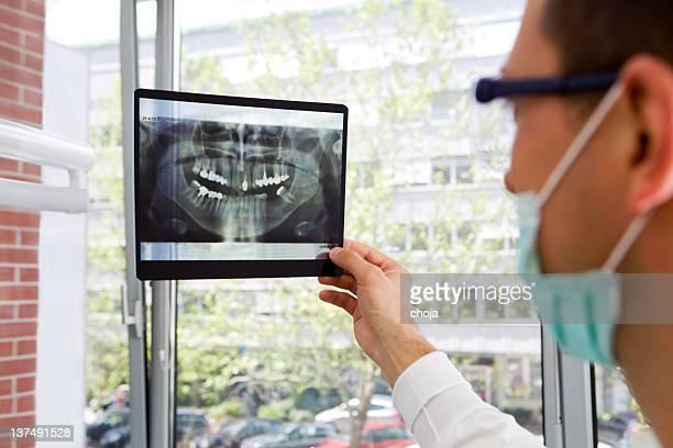 Dentista esaminando una radiografia è di denti