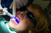 A dentist uses an ultra violet light to set composite fillings in the molars of a young boy.