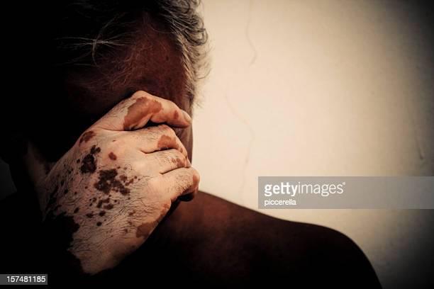 Uomo disperato interessati da vitiligine