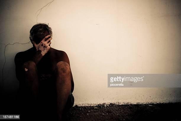 Ein verzweifelter Mann durch vitiligo