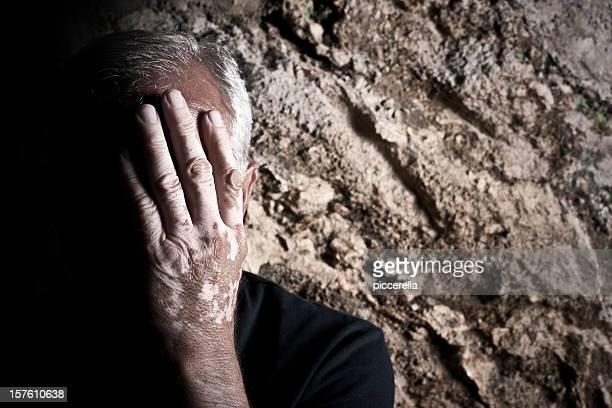 Homem desesperado a afectada pela vitiligo