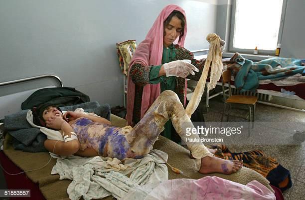 Desperation Drives Women To Self Immolation In Herat