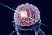 Destruction of brain tumor by laser, 3D illustration. Conceptual image for brain cancer treatment