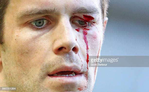 A detail of the blood on the face of Trent Cotchin captain of the Tigers as leaves the field injured during the round 22 AFL match between the...