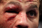 A detail of the cut on the left eye of Josh Koscheck after his fight against Georges StPierre during their Welterweight Title bout during UFC 124 at...