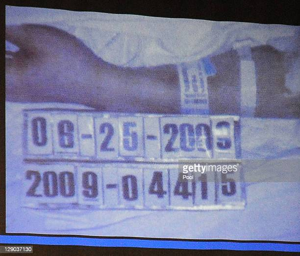 A detail of the photograph from the coroner of Michael Jackson's body is projected by the prosecution during Dr Conrad Murray's involuntary...