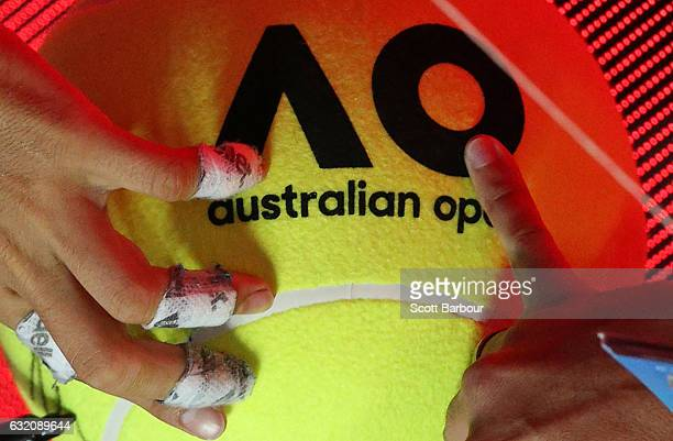 A detail of the taped up fingers of Rafael Nadal of Spain as he signs autographs after winning his second round match against Marcos Baghdatis of...