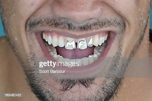 A detail of the teeth of Mahe Fonua of the Storm as he laughs during a Melbourne Storm NRL recovery session at AAMI Park on March 11, 2013 in Melbourne, Australia.