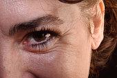 Detail of wrinkles in a woman's eyes