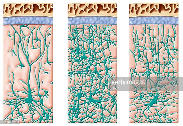 Development Of A Child's Brain Cell Network Illustration Of The Development Of A Child's Brain Cell Network At 9 Months 2 Years And 4 Years Of Age...