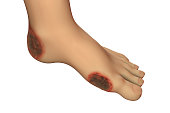 Diabetic foot ulcer, 3D illustration showing common location of diabetic ulcer lesions