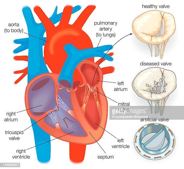 Diagram Showing A Healthy Heart Valve Compared With A Diseased Heart Valve And An Artificial Heart Valve