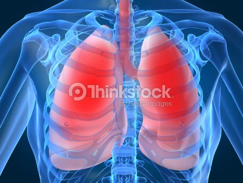 Diagram showing inflamed or infected lungs stock photo thinkstock diagram showing inflamed or infected lungs stock photo ccuart Choice Image
