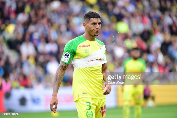 Diego Carlos of Nantes with his injured shoulder during the Ligue 1 match between FC Nantes and Olympique Marseille at Stade de la Beaujoire on...