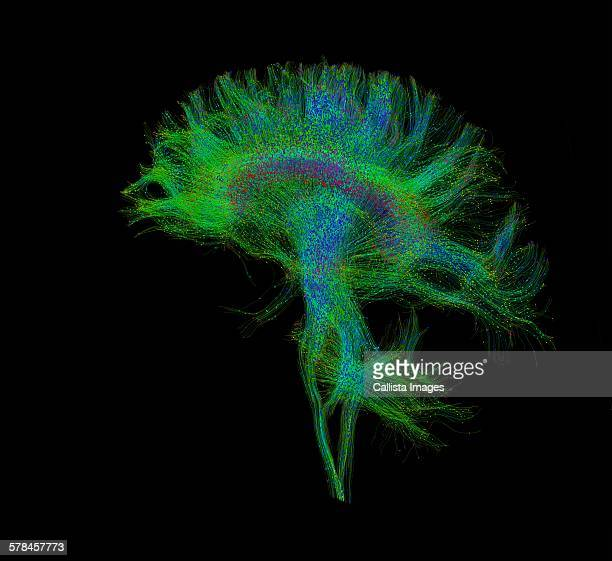 Diffusion MRI, also referred to as diffusion tensor imaging or DTI, of the human brain