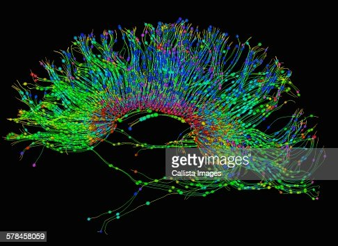 Diffusion MRI, also referred to as diffusion tensor imaging or DTI, of the human brain : Stock Photo