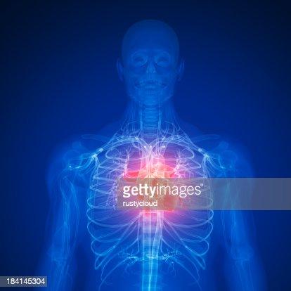 Digital illustration of a human depicting a heart attack