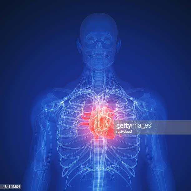 Digital illustration of a human depicting a heart attack