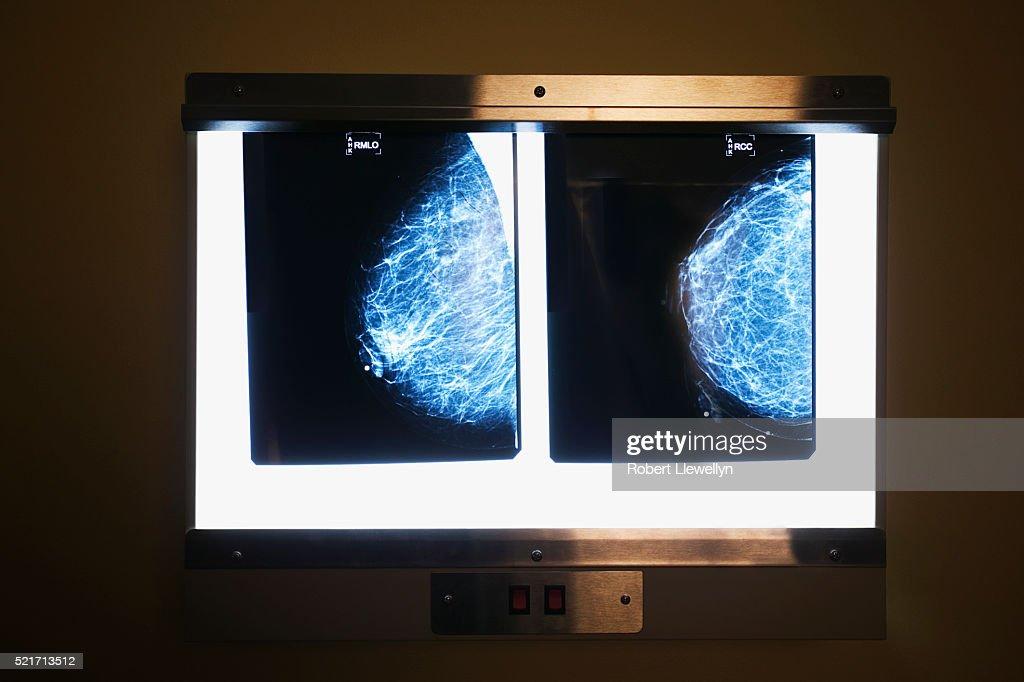 Digital Mammography X-Ray