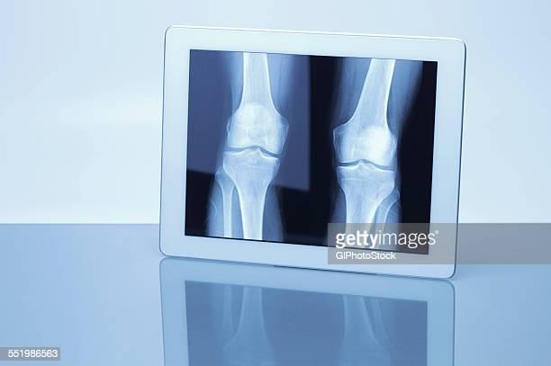 Digital tablet displaying X-ray image of knees