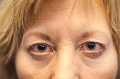 Close up of red dry eyes with dilated pupils of a Caucasian woman after an opthamologist eye exam appointment