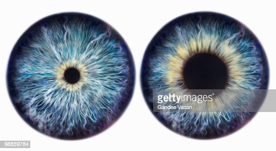 Dilating Iris